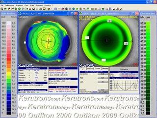Programma computerizzato per lenti CRT